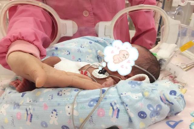 宁波1早产儿出生只有1公斤 成为医护人员掌上明珠