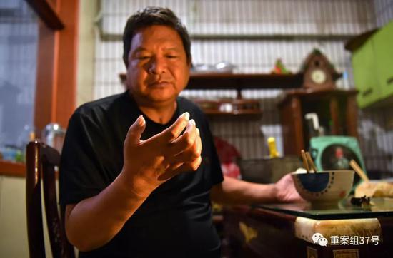 pt大奖官方网站手机版 云南省试行养老机构照护标准:老年人护理分四个等级