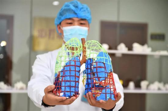 湖南郴州打印出湖南首例新冠肺炎3D模型,用于临床指导治疗图片