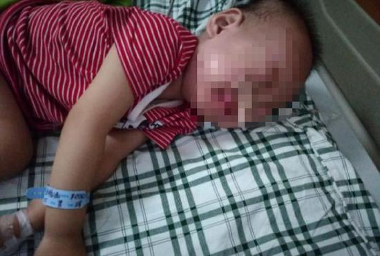 2岁娃误吞电池近20天却当胃病医 取出已严重腐蚀