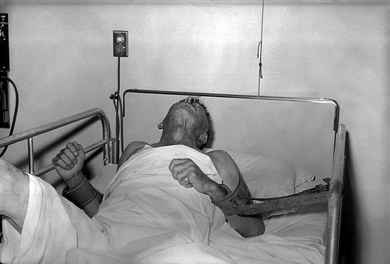图为得了狂躁性狂犬病的病人,情状极度痛苦