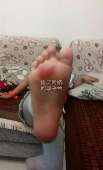 △小孩的脚掌冒起了硬币大小的水泡。