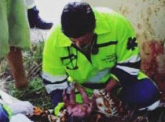 孕妇遇车祸肚子被划破 女婴遭挤出母体后生还