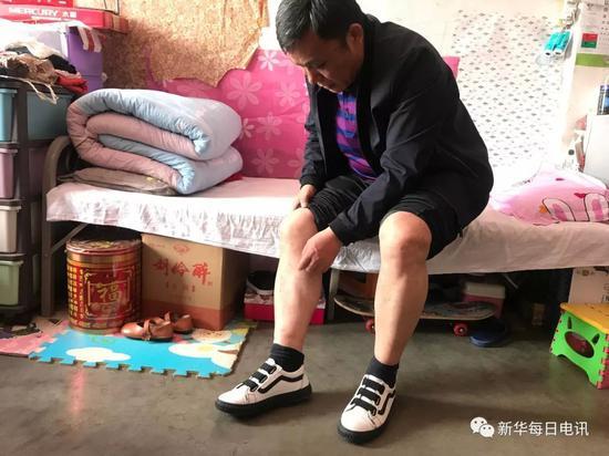 """2018-08-20,在县城里的临时租房内,周继坤卷起裤腿,指着双腿上深浅不一的伤疤称,""""这都是当年刑讯逼供留下的。"""" 记者张紫赟 摄"""