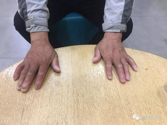 ▲刘忠林展示受伤的手指。  新京报记者袁静伟 摄