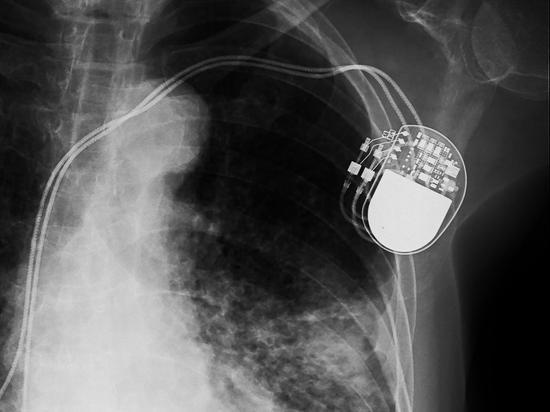 研究称心脏起搏器存漏洞 黑客侵入或可遥控杀人