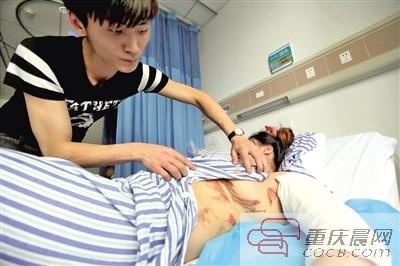 杨燕手臂和下身多处被烫坏,昨天还躺在病院里。 本报记者 雷键 摄