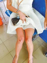 四川游客花花这次越南游落得满身伤痕。