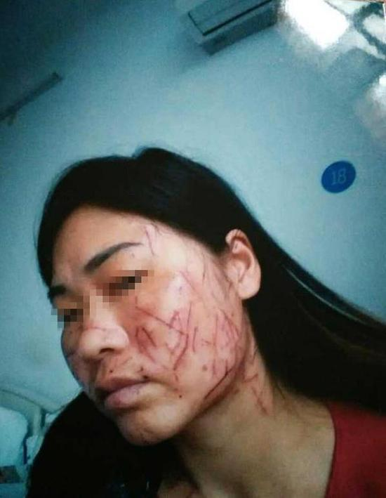 南阳女子脸部被划100余刀