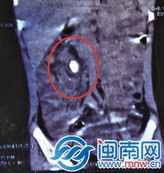 小依的右肾长了个不小的结石(画圈处)