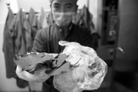 """10月30日,长沙市中心医院,医生展示周师傅泡水喝所用的""""药材""""。图/记者辜鹏博"""