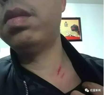 胡高正展示他被挖伤的颈部