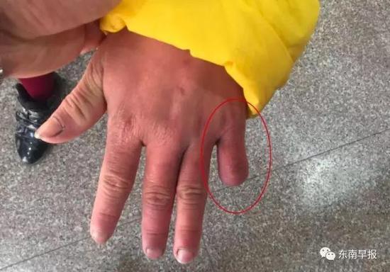 残忍:小拇指被剪