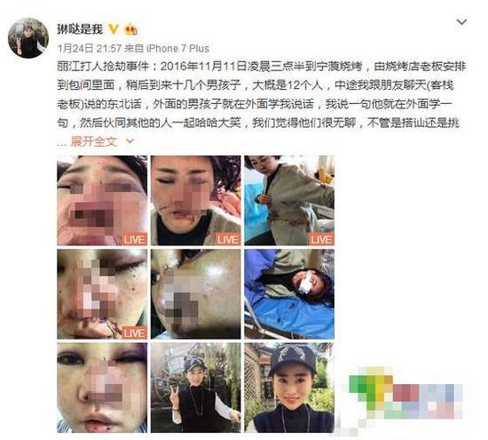 小董被打伤后发布的微博截图