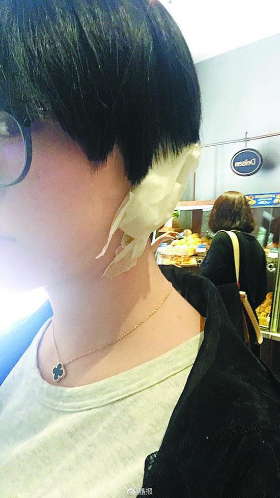 吴女士耳朵很受伤。