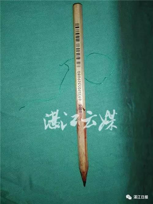 手术拔出的铅笔。通讯员黄浩中摄