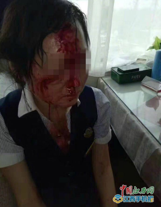 硬座旅客强坐软卧被劝阻 砸伤女列车员血流满面