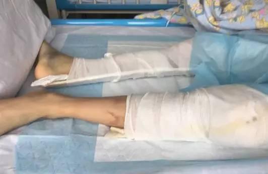 ▲张林(化名)从住宅四楼的天台跳下,造成双腿严重性骨折。图片来自网络