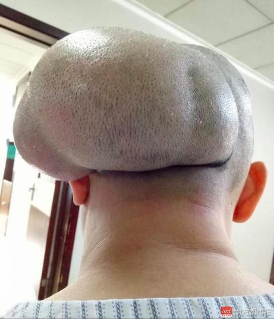 女子头上带瘤三十余年 脑袋是正常人1.6倍