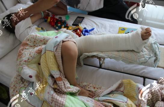 """明明的主治医生说,明明左小腿粉碎性骨折,不排除会留下后遗症,""""以后可能会走路一高一低""""。"""