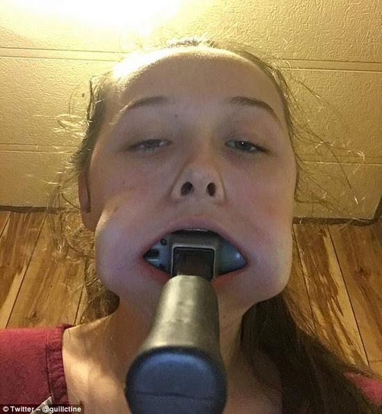 少女为追韩明星将锤子塞嘴里 长达10分钟