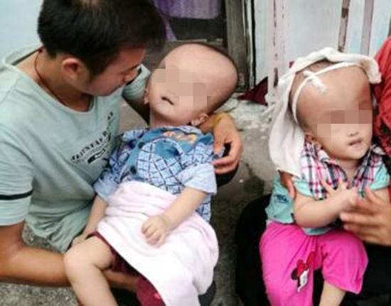 双胞胎兄弟早产头部畸形 眼睛上翻生命垂危(图)