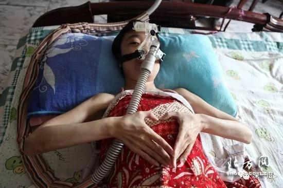 一名庞贝氏症患者。 北方网 图自救
