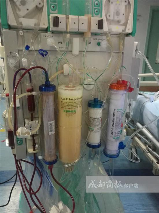 ▲血脂净化系统仪器