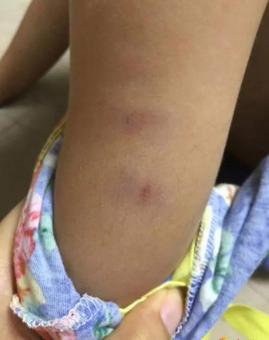 另一名学生琪琪(化名)腿部有多处伤痕。