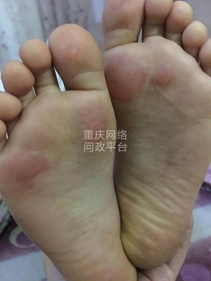 △网友在华龙网问政平台上面贴出学生脚底受伤的照片。