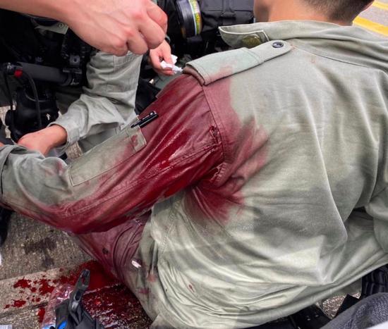 男子持利器刺伤警务职员