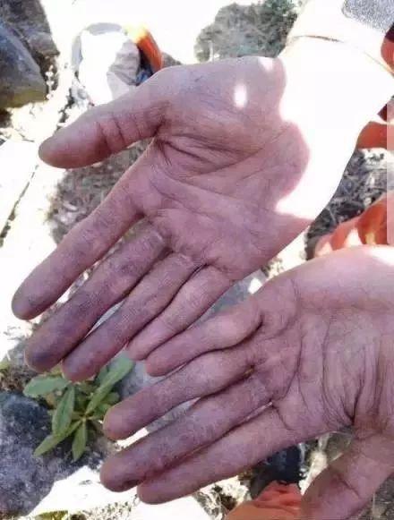 年轻消防队员在朋友圈展示的双手,这次凉山扑火,他不幸牺牲。