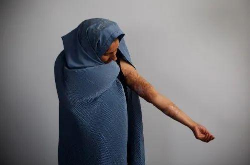 ▲ 受害女性展示自己被家暴的痕迹 /图源:网络