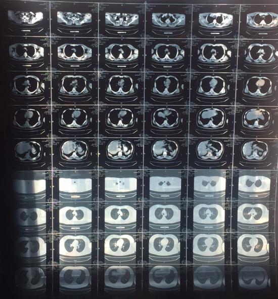 王睿的肺CT影像。受访者供图