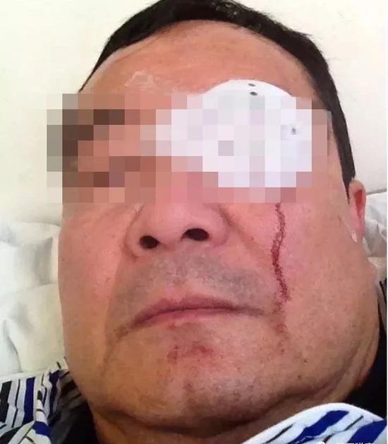 岳父被打伤