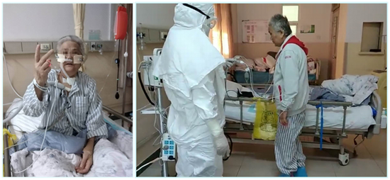 陕西最危重新冠患者痊愈 使用ECMO49天 病历达1600页图片