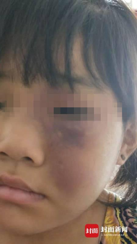 8岁女童被家人吊打满身伤痕 警方:因不做作业