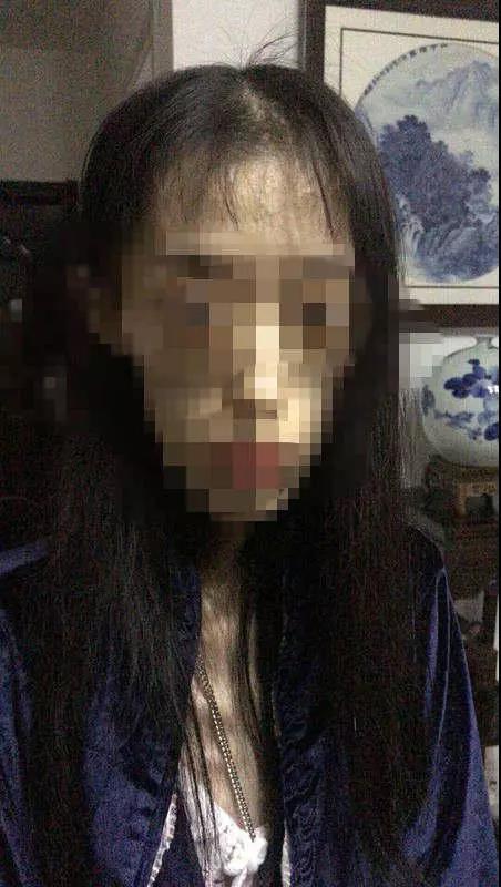 21岁女孩减肥至50斤 2次脑出血脑组