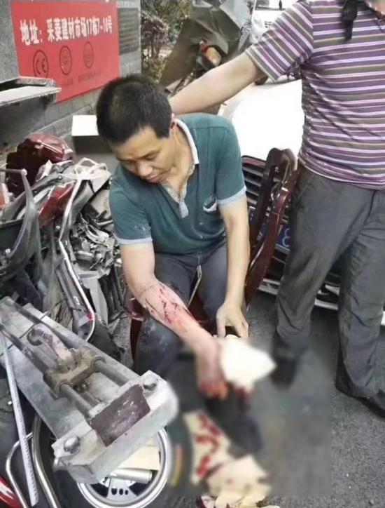 △被撞受伤的农民工。网络图片