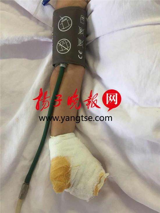 因被电击,两岁的乐乐左手三根手指烧伤非常严重。 刘威 摄