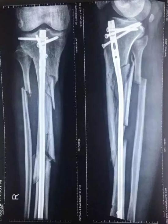 ▲张毅的右小腿骨粉碎性骨折。 图片来源:新京报