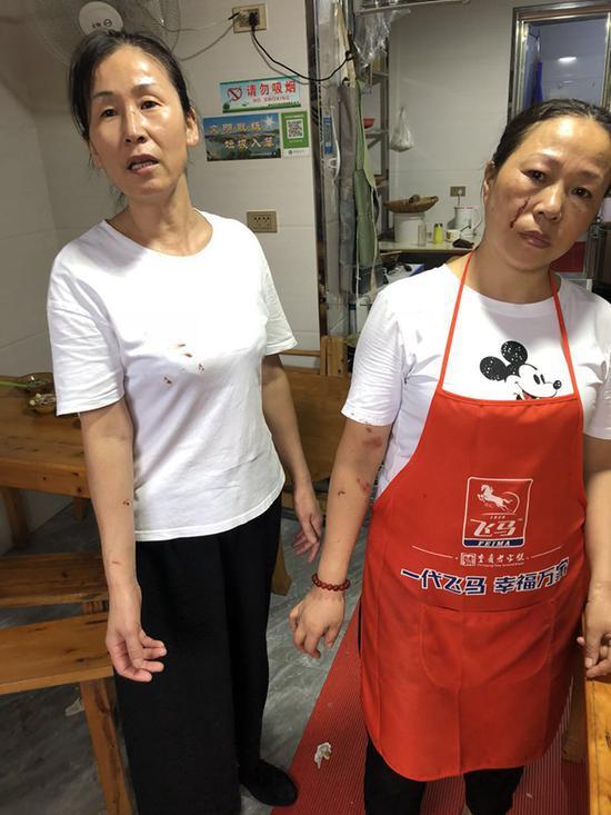 四川阆中城管执法起冲突误伤女童,城管局:正在调查