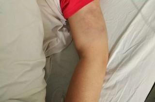 女子因拿工资补贴娘家 遭丈夫拳打脚踢住院16天