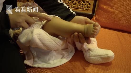 4月大女婴全身青肿不停哭 只因亲生母带她做这事