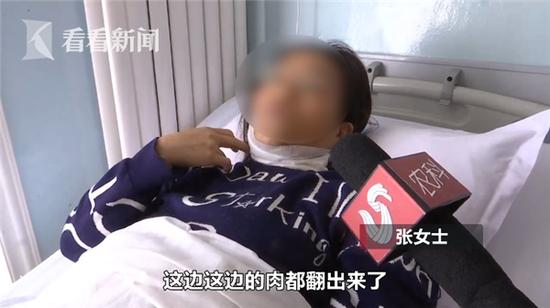 凤凰平台真人娱乐网·脸盲症:一种连亲妈都不认识的病!