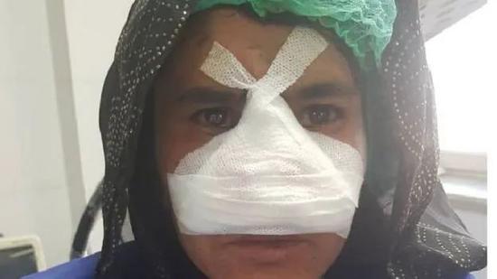 ▲ 被割鼻的扎尔卡手术后 /图源:网络