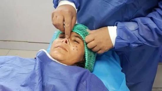 ▲ 初步手术后的扎尔卡 /图源:BBC