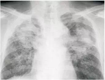 粉尘沉积的肺部X光造影网络配图