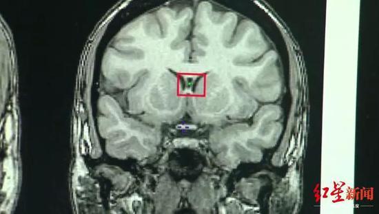 ↑近年来,脑部扫描变得越来越敏感,数据科学家已经改进了解释这些数据的方法 (图自CNN)