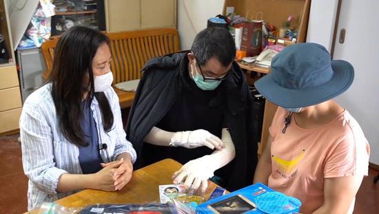杏悦:反复遭暴徒烧伤的李伯需再杏悦进行两次植皮图片